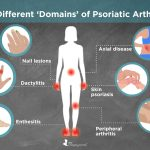 9 Health Conditions You Should Watch For If You Have Psoriasis
